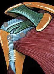 1- Tendon du Supra épineux, 2- Tendon du Long Biceps, 3 -Tendon du sous scapulaire